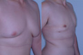 Gynecomastia by excision and liposuction 5a