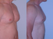 Gynecomastia by excision and liposuction 6b