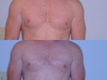Gynecomastia by excision and liposuction 6c