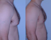 Gynecomastia by excision and liposuction 7a