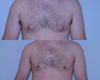 Gynecomastia by excision and liposuction 7b