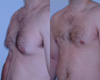 Gynecomastia by excision and liposuction 7c