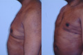 Gynecomastia by excision and liposuction 8a
