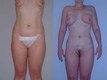 Liposuction Abdomen and Flanks 14a