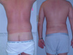 Liposuction Abdomen and Flanks 1a