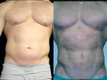 Liposuction Abdomen and Flanks 8b