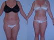 Liposuction Abdomen, Hips and Flanks 17a