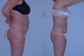 Liposuction Abdomen, Hips and Flanks 17d