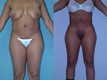 Liposuction Abdomen, Hips and Flanks 1a