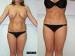 Liposuction Abdomen, Hips and Flanks 2a