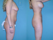 Liposuction Abdomen, Hips and Flanks 5d