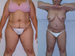 Liposuction Abdomen, Hips and Flanks thighs 1a
