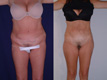 Liposuction Abdomen, Hips, Lateral thighs 1a