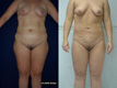 Liposuction Abdomen, Hips, Lateral thighs 2a