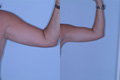 Liposuction Arms 1b