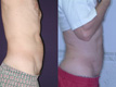 Liposuction abdomen and Flanks 11b