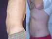 Liposuction abdomen and Flanks 11c