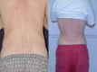 Liposuction abdomen and Flanks 11d