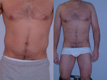 Liposuction abdomen and Flanks 6b